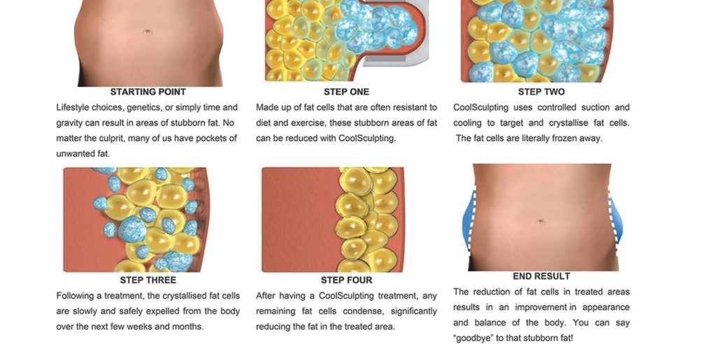 Step By Step Coolsculpting Treatment
